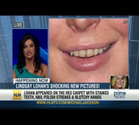 Lindsay Lohan's teeth: Before and after