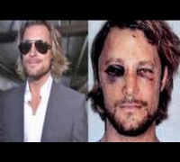 New Photos Of Halle Berry ex's - Gabriel Aubry Bruised Face